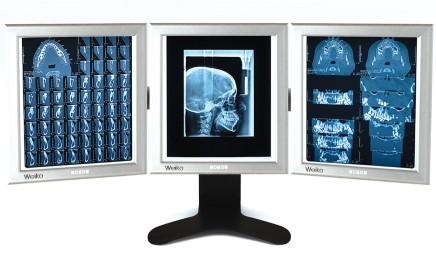 Negativoscopi Ottotipi Tavole Optometriche